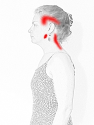 Back Pain in Trapezius near Head